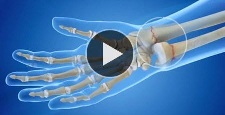 Multimedia - Rebecca S. Yu, MD - Hand and Upper Extremity Surgeon
